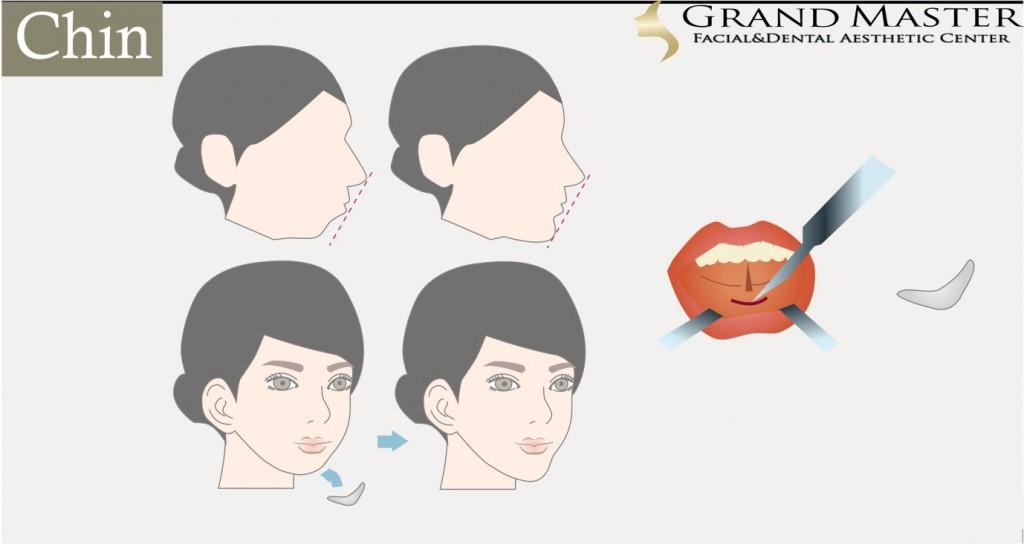 ศัลยกรรมเสริมคาง (Chin Augmentation )