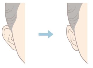 ศัลยกรรมหูกาง (Otoplasty)