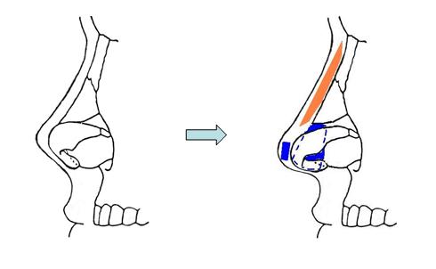 เสริมจมูกแบบ เกาหลี   ( Korea Rhinoplasty )