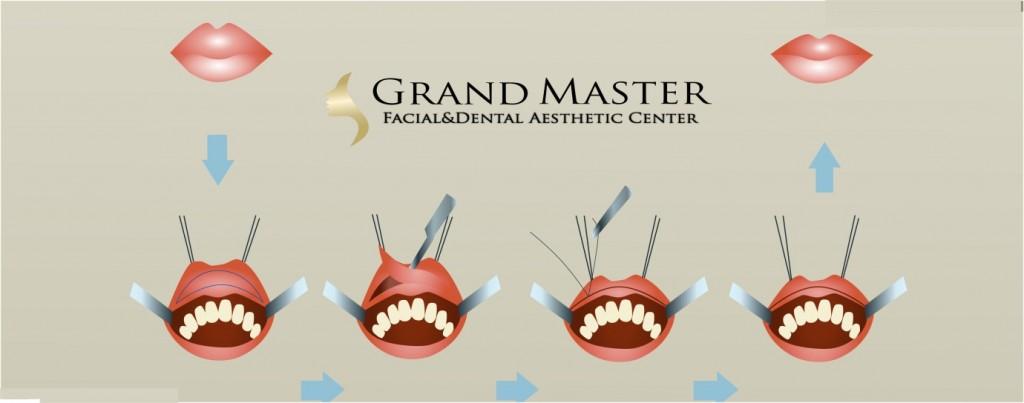 ศัลยกรรมตัดริมฝีปาก ( Thin lips )
